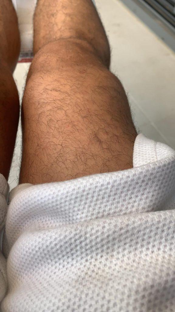 צילום של ברך נפוחה על ידי מטופל