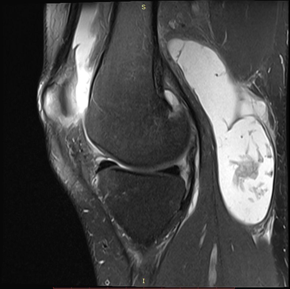זו בדקת MRI שמדגימה ציסטה על שם בייקר גדולה במיוחד.