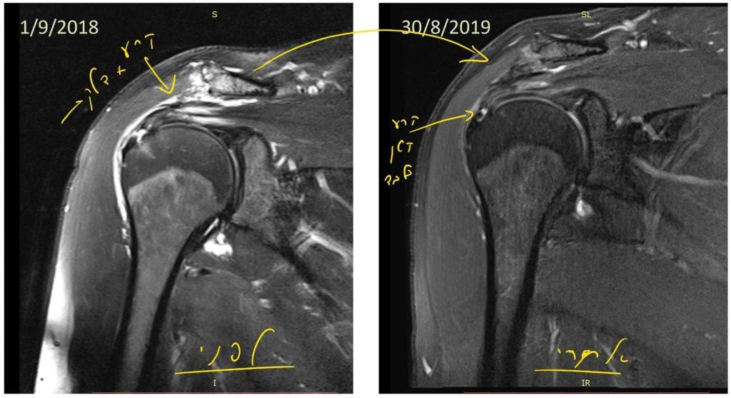 תמונה של קרע גידי שרוול מסובב בכתף לפני ואחרי הזרקת PRP